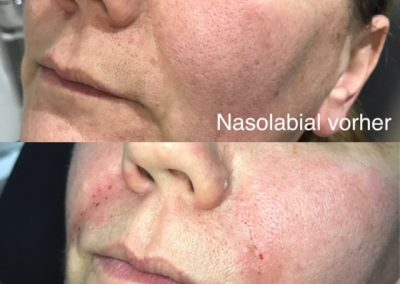 Nasolabial Hyaluron
