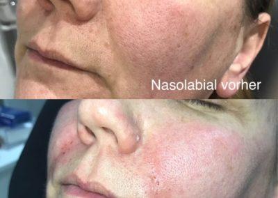 Nasolabial II Hyaluron Behandlung