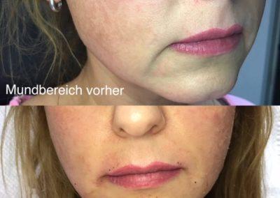 Hyaluron Behandlung Mundbereich
