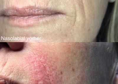 Hyaluron Behandlung Nasolabial